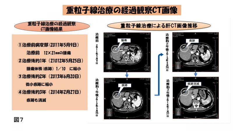 重粒子線治療CT画像