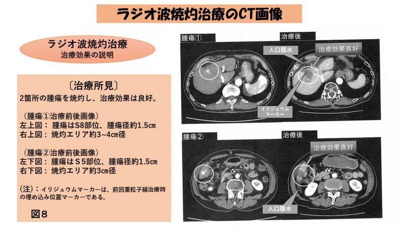 ラジオ波焼灼治療CT画像